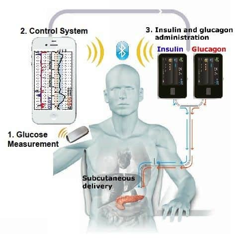 Will there be an Artificial Pancreas on the Market by 2017?