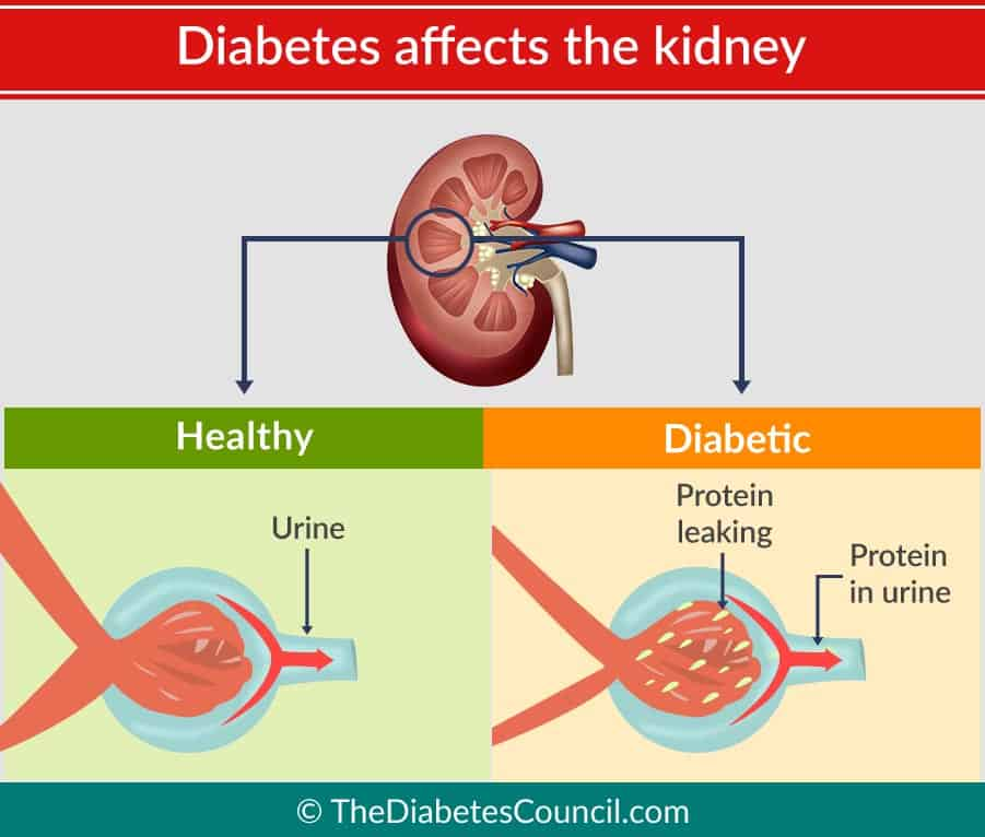 Diabetic Nephropathy - Kidney Disease