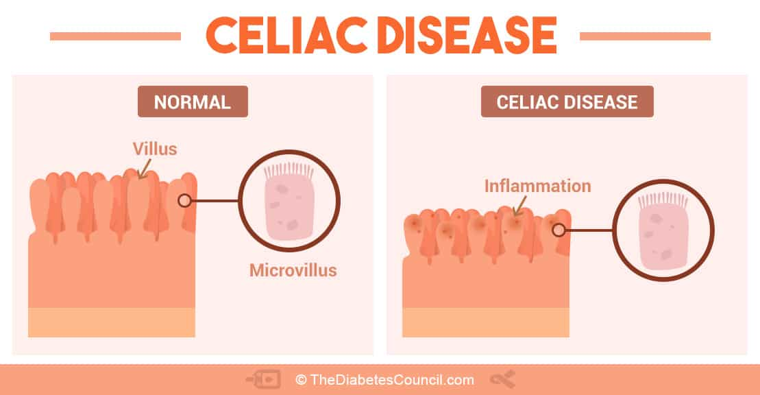 balancing diabetes and celiac disease celiac disease chromosomes the image below gives a good illustration of what happens in the small intestines when gluten is eaten