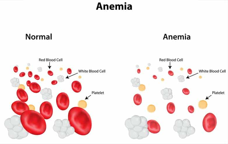 Diabetes And Anemia Are They Related