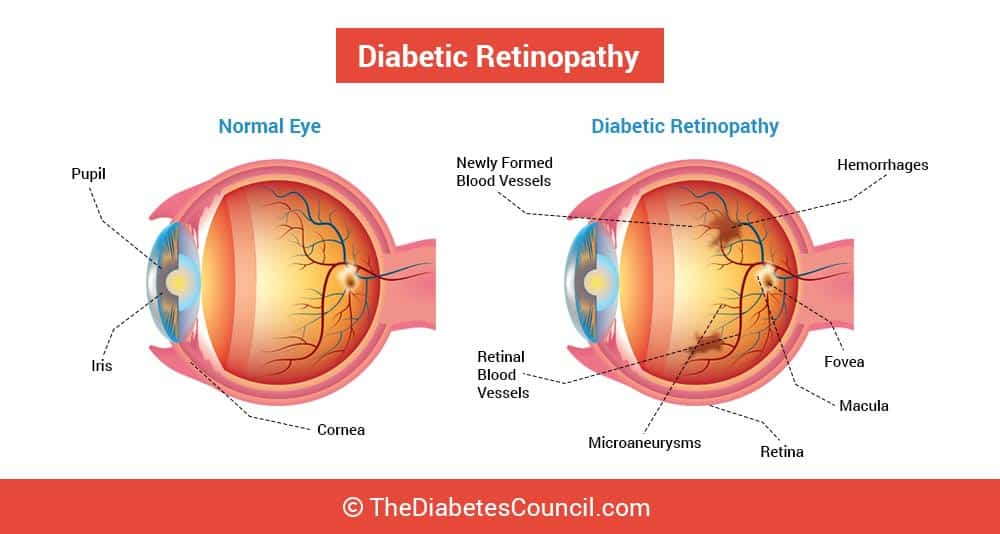 Blurred Vision An Important Sign Of Diabetes